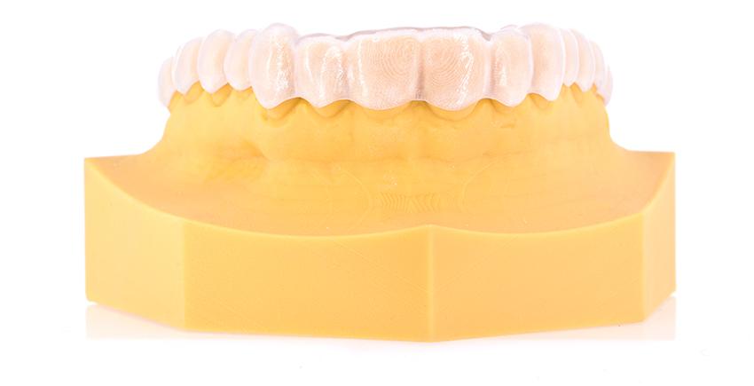 ZrO2-Digital Dental-Aufbissschiene
