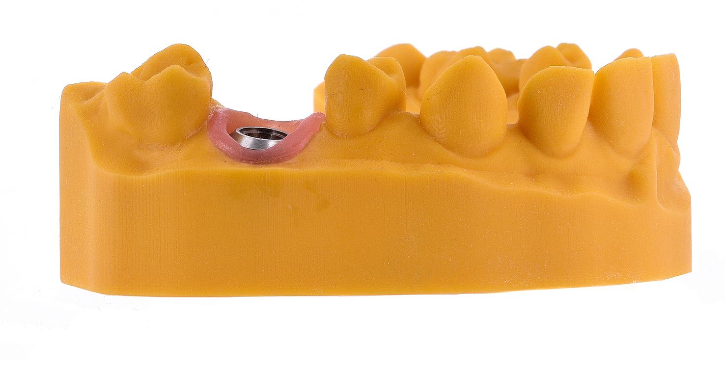 ZrO2-Digital Dental-3D - Modelle