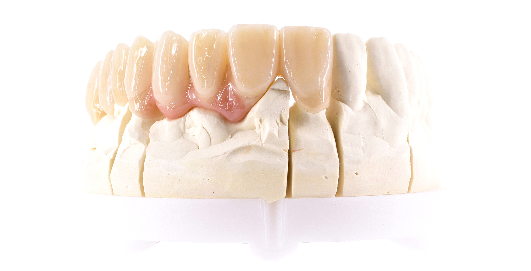 Zro2-Digital-Dental-zahnersatz-1