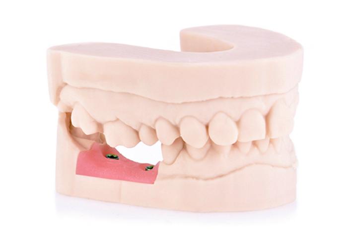 ZrO2 Digital Dental 3D Druck