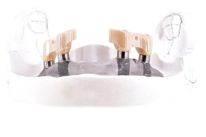 ZrO2 Digital Dental Implantatstege